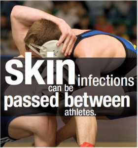 mrsa-skin-infect-between-athletes